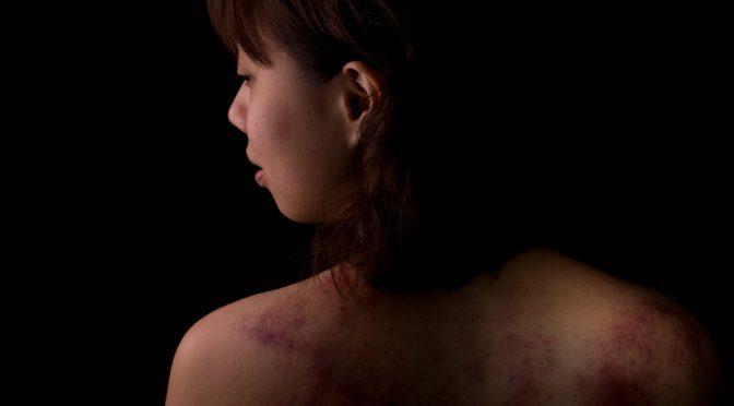 Foto de Violencia Doméstica.